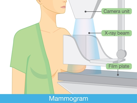 Cancer Prevention Tests - Mammogram To Check The Presence Of Tumours in Breasts in The Form Of X-Ray Report