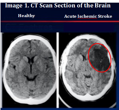 CT scan of Brain showing healthy brain on left side and damaged brain due to acute ischemic stroke