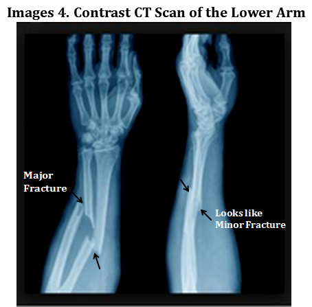 Different sides of CT scan reports of the lower arm with contrast showing fracture