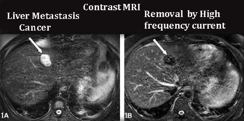 What is mri scan detailed note on mri scan and its for What does contrast do