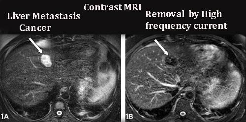 Contrast MRI of Liver Metastasis cancer