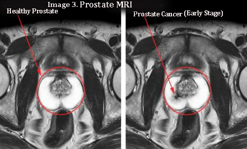 MRI of Prostate showing healthy and early stage of prostate cancer