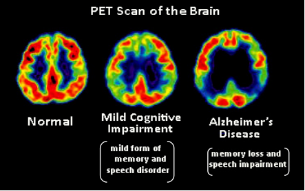 PET Scan - Positron Emission Tomography And How To Prepare