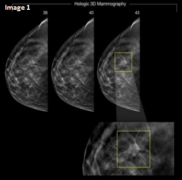 Mammogram test of a lady who is at high risk of breast cancer at the age of 36. Later at the age of 43 in the mammogram test it was found that the cancer has spread