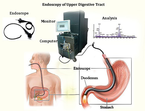 Endoscopy is a procedure in which a doctor uses an instrument consisting of flexible tube with camera to detect any abnormalities