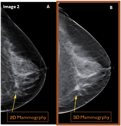 The 2D mammogram shows a suspicious hidden spot which was reveal as cancerous with the 3D tomosynthesis imaging