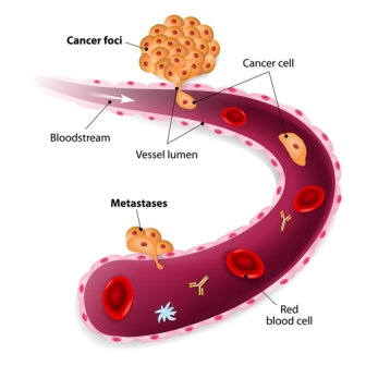 CTC helps to detect metastatic cancer