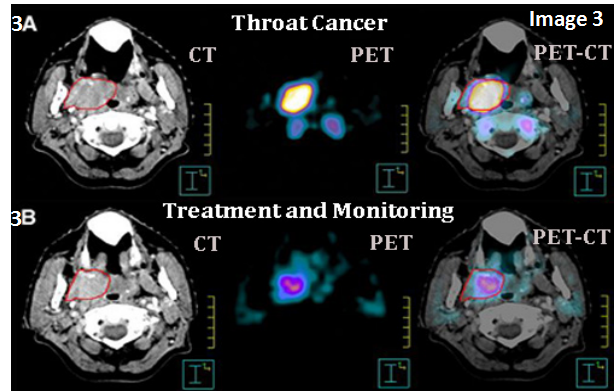 Before and After treatment image of CT, PET and PET CT scan of cross section of a throat indicating cancer
