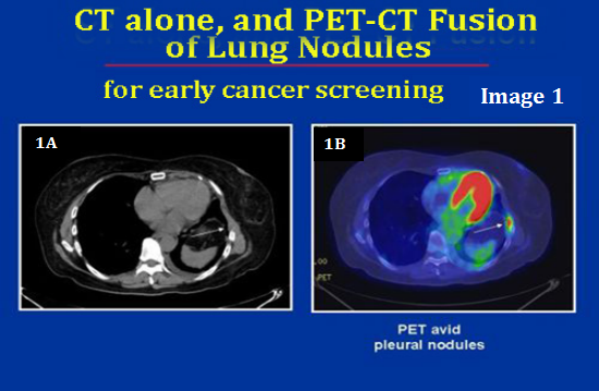 CT and PET CT of early detection of Lung cancer