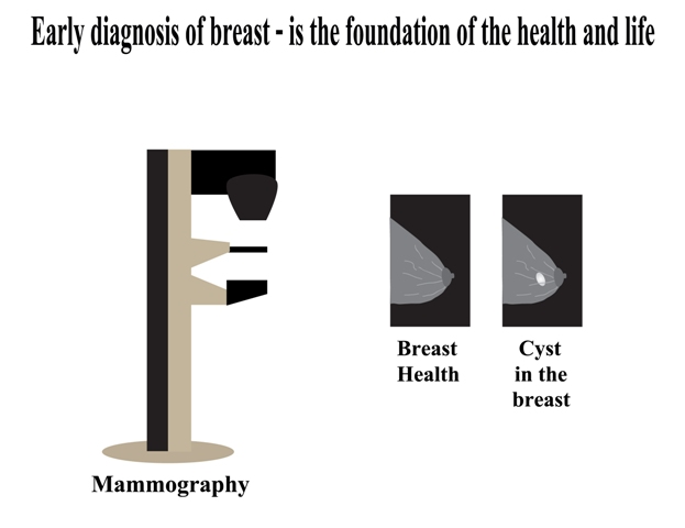 The mammogram sometimes might show false results