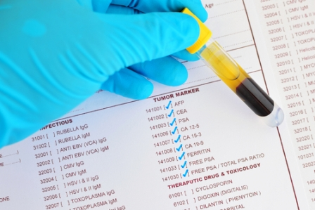 Tumour Marker detect the proteins made in excess of tumour cells