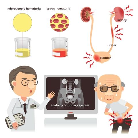 urine test for cancer,urine test