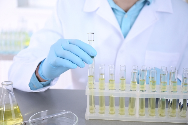 If Urine analysis tests reveal abnormal cells, additional tests are carried out to confirm the development of cancer