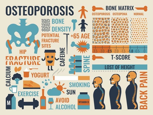 Prevention of osteoporosis : Exercise, eat calcium rich food, avoid alcohol and smoking