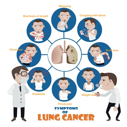 Lung Cancer Symptoms And When You Should consult the doctor