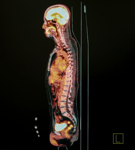 PET Scan or Nuclear Medicine Scan Result Of Body Lateral View