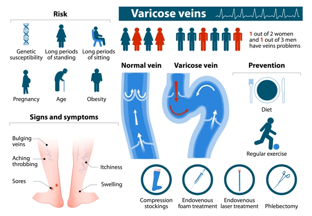 Varicose Veins Treatment Cost, Risks, Signs & Symptoms and Prevention