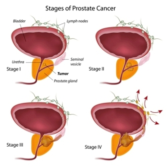 The size of tumour in prostate cancer increases and then it spreads to different organs