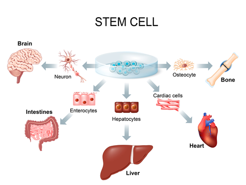 There are many options to treat cancer, during the treatment doctor examines the cancer progress and tumour response. One of the treatments is stem cell transplant