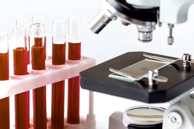 Full Blood Test not only prevent us from life threatening disease also to check the level of sex hormones etc.