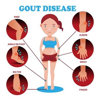 Gout relief in Just 2 Days  gouturcinolcom