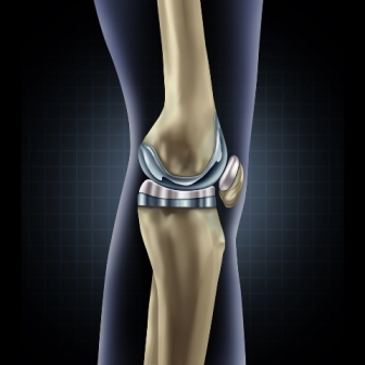 One of the main reasons for high Knee Replacement Surgery Cost in India is the use of quality implants
