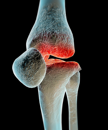 Osteoarthritis is one of the main reasons why Knee replacement surgery is done
