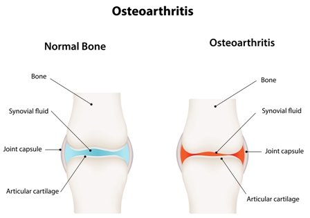 Osteoarthritis is the main cause of hip pain in elder people