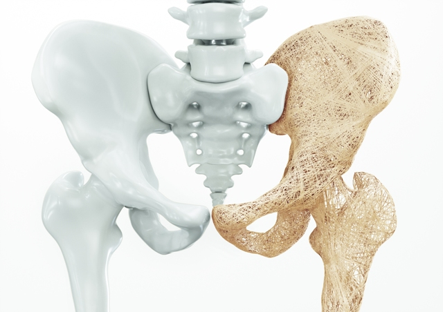 Damage in Hip requires Hip Replacement Surgery