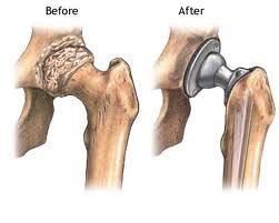 Before and after total hip replacement surgery