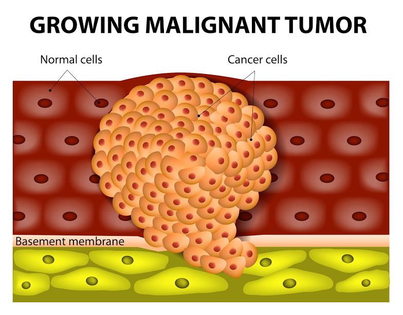 Malignant tumours spreads to various parts of the body